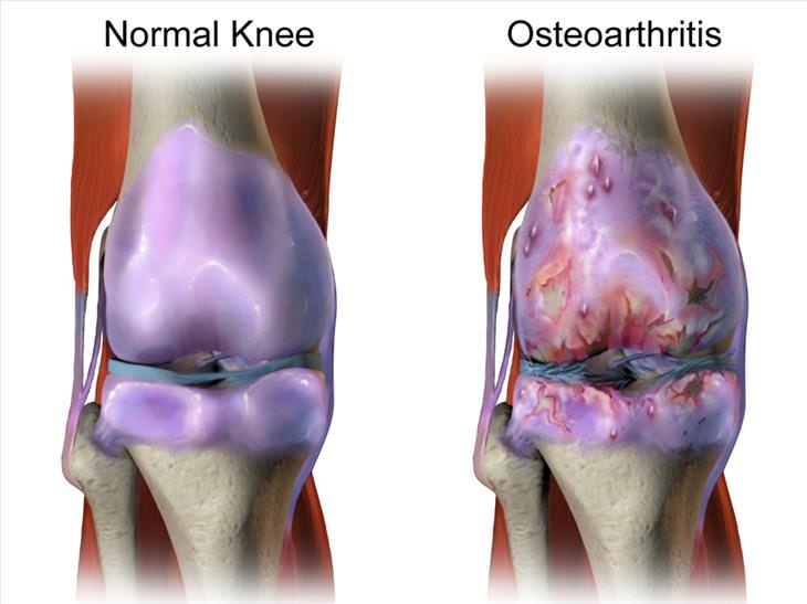 Tuina massage guide osteoarthritis