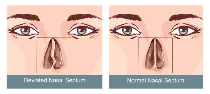deviated septum guide what it looks like