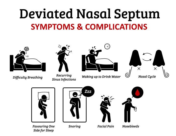 deviated septum guide symptoms and complications