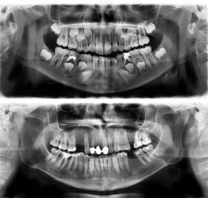 X-Ray Images child teeth versus adult