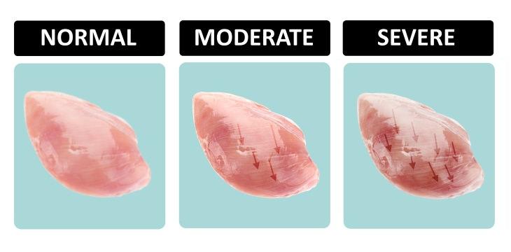 chicken breast nutrition striping variations
