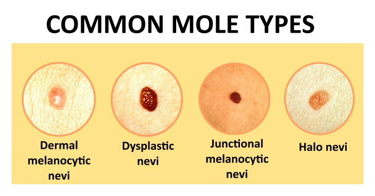 Skin Mole Removal Considerations and Methods | Health