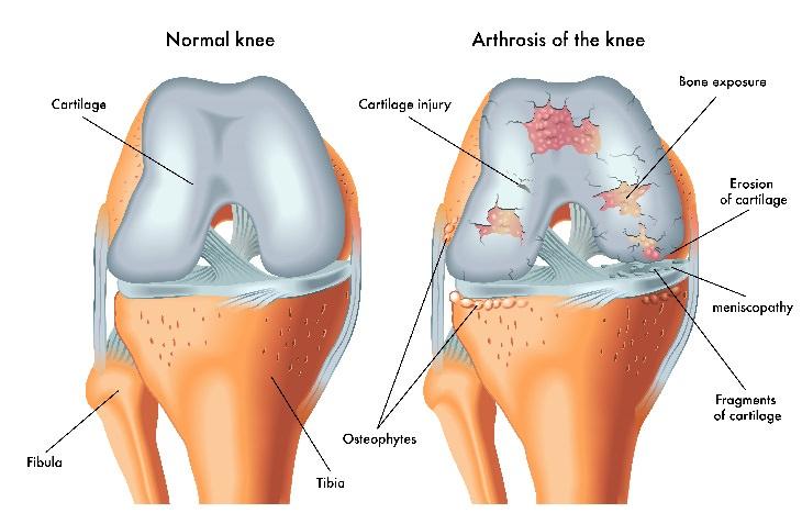 Supplements: Glucosamine Chondroitin cartilage