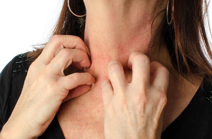 Sun allergy PLE: itchy rash