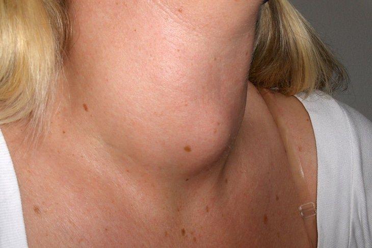 Thyroid disorders: goiter