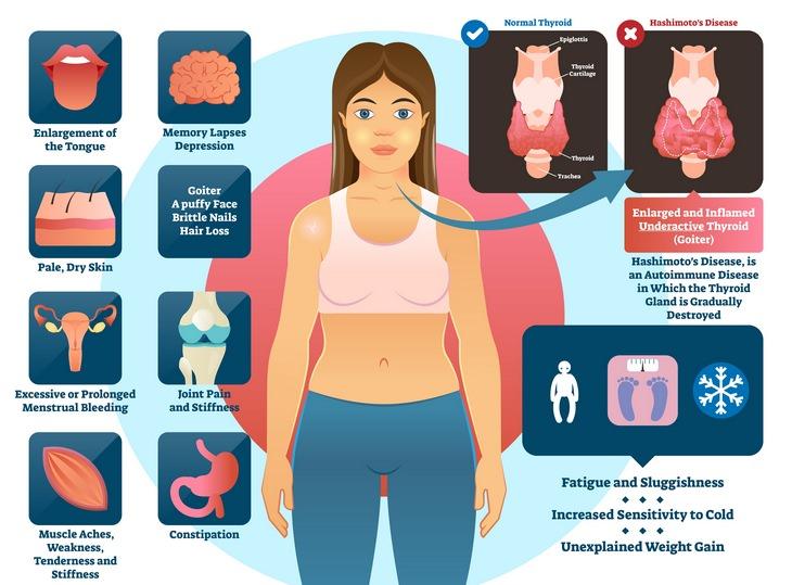 Thyroid disorders: Hashimoto's disease thyroiditis