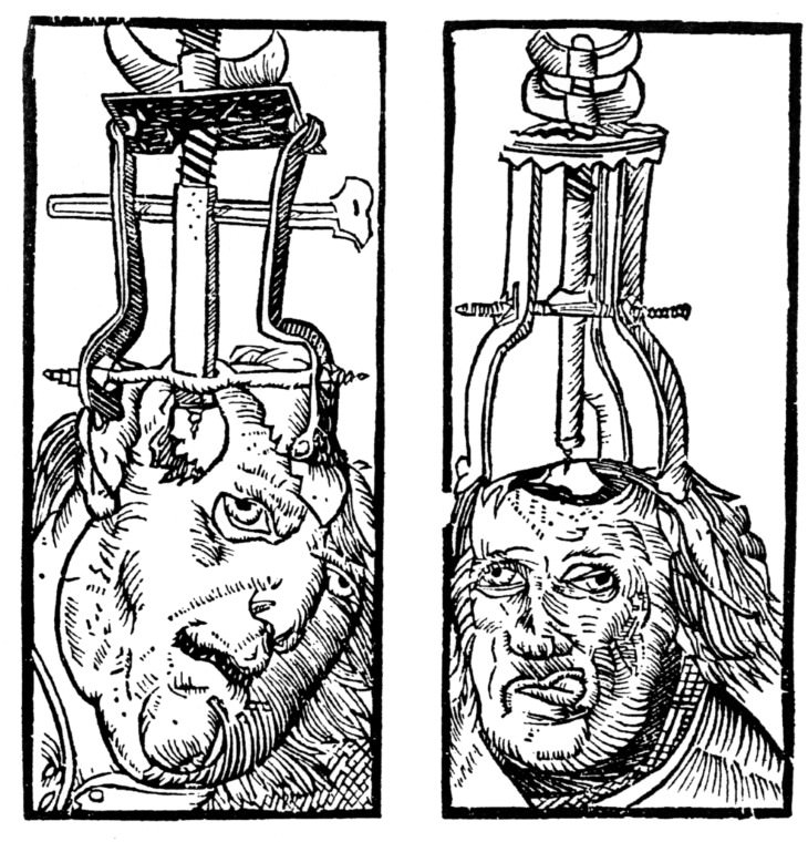 6 Weird and Creepy Medical Tools of the Past Trepanation Devices