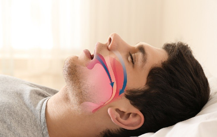 dry mouth health guide man with sleep apnea
