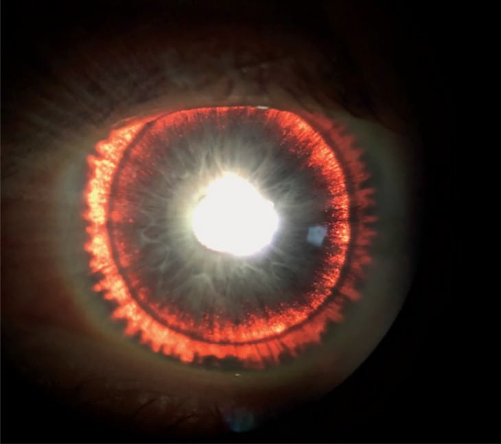 Bizarre Medical Cases of 2019 glowing iris
