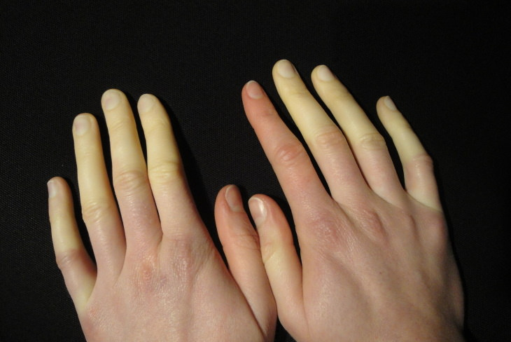 Cold Feet Causes and Remedies Raynaud Syndrome