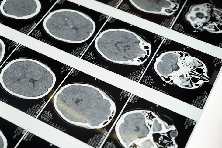 loperamide as a potential treatment of brain cancer brain scans