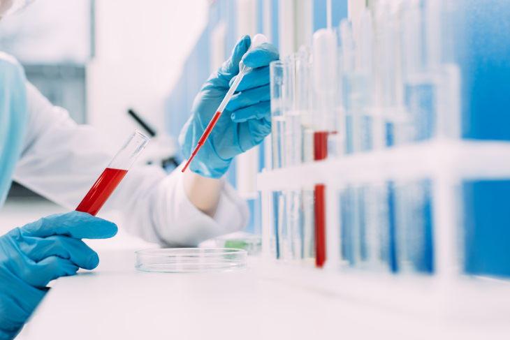 passive antibody therapy for coronavirus lab blood test