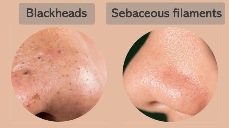 Blackhead Removal blackheads sebaceous filaments