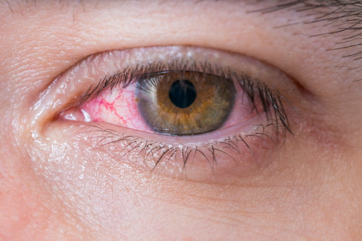 How to Treat Pink Eye at Home