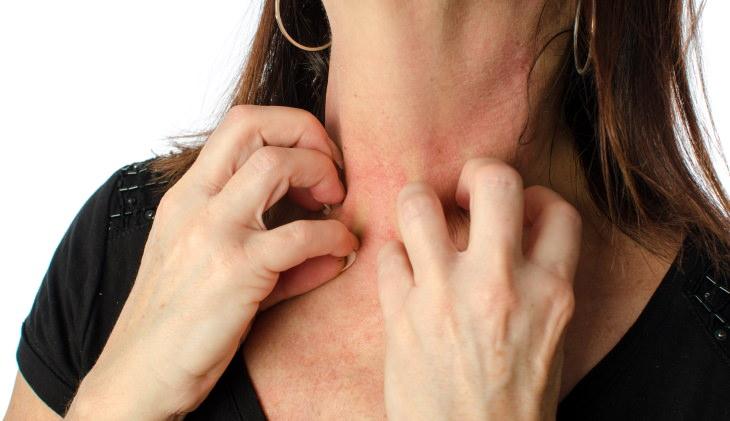 Stress Rash woman scratches rash on her neck