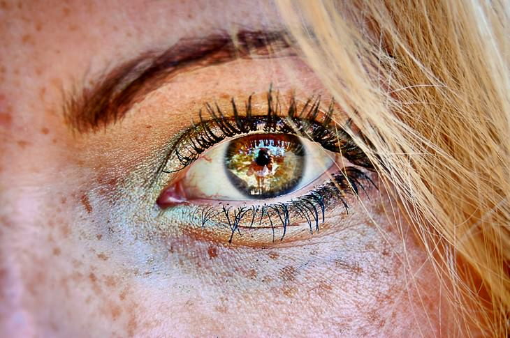 Surprising Reasons for Adult Eye Color Change iris freckles
