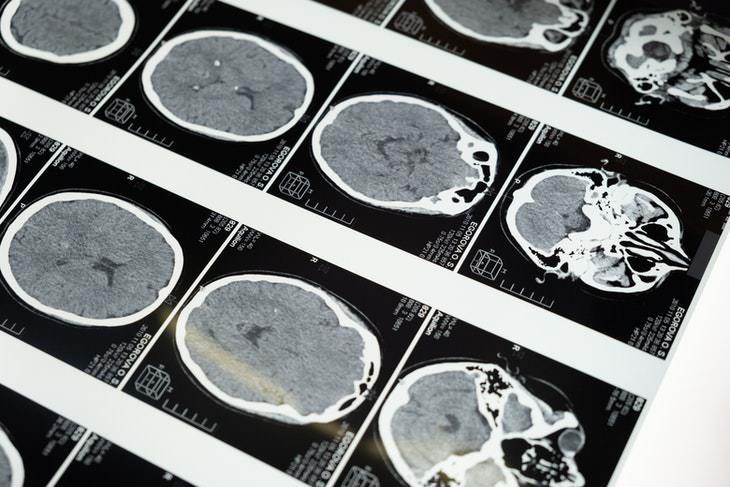 Melatonin and Memory brains scans