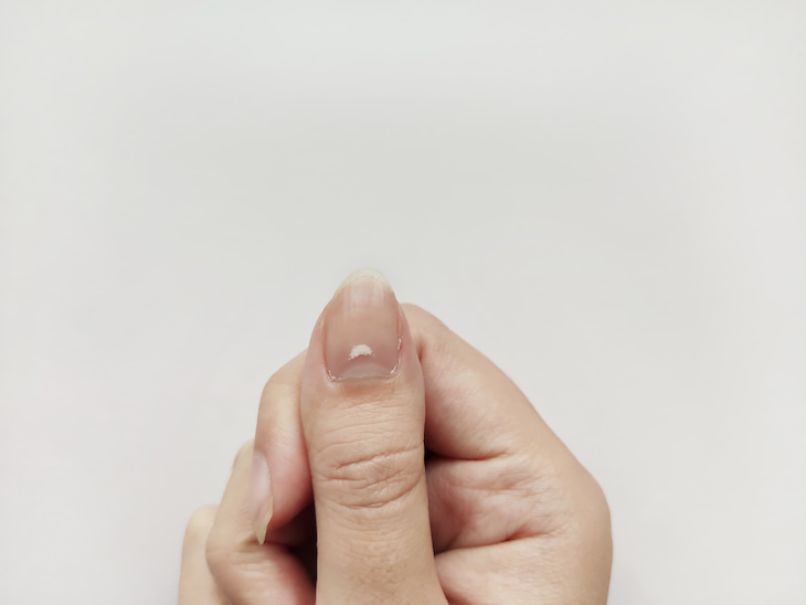 7 Causes For White Spots to Appear On Your Nails, white spot on nail
