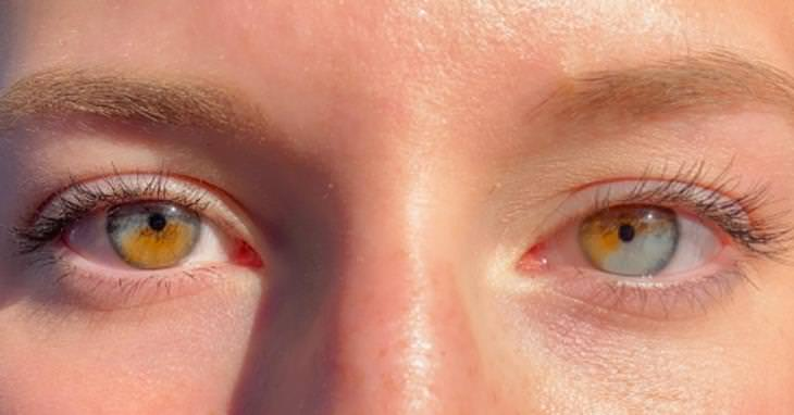 Photos of Nature partial heterochromia in both eyes