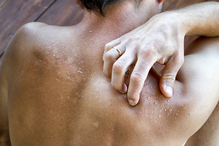 The Do's and Don'ts of Healing a Sunburn itching