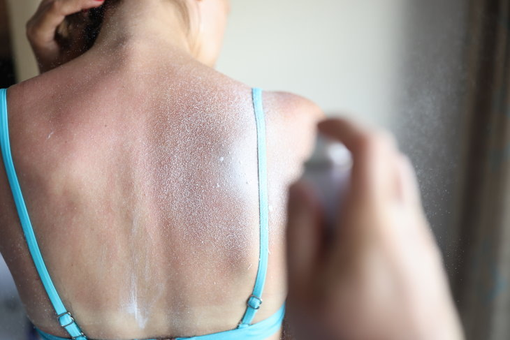 The Do's and Don'ts of Healing a Sunburn woman with sunburn
