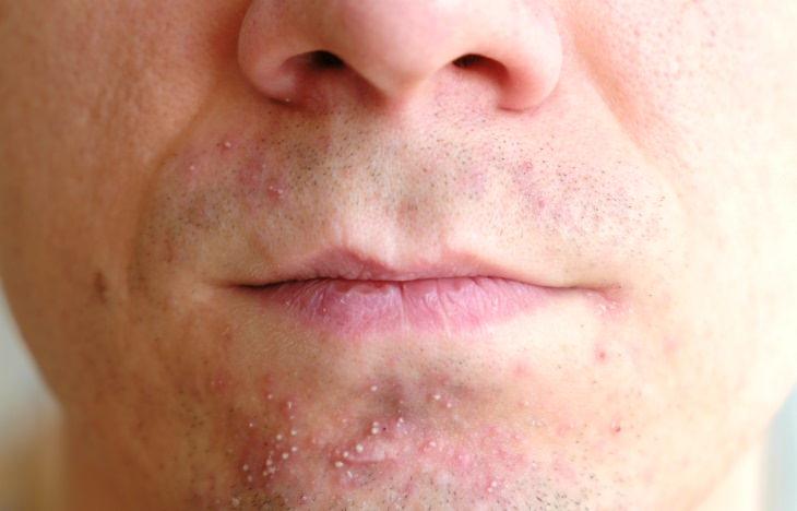 Summer Skin and Hair Problems Folliculitis