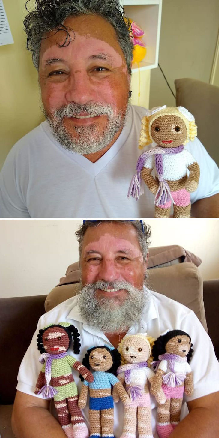 Wholesome Stories Proving Grandparents Are Awesome vitiligo dolls