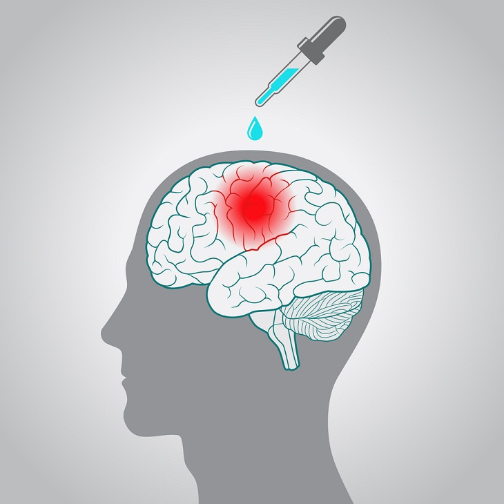 Ketamine Therapy, Depression, anesthetic