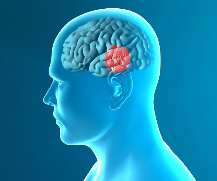 Neurodegenerative Diseases, brain disease