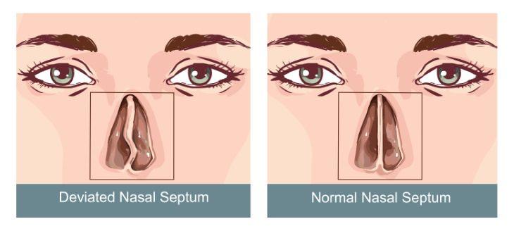Snoring Causes deviated nasal septum
