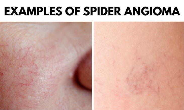 Spider Angioma examples