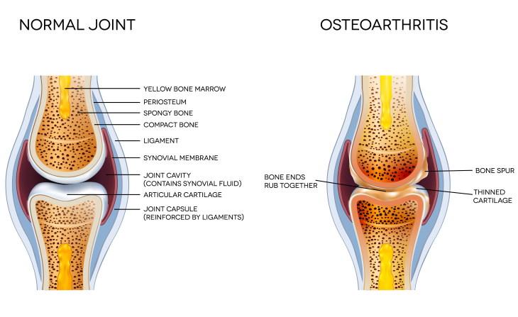 Arthritis Types Osteoarthritis