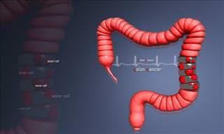 Who is at Risk of Colon Cancer and How it Can Be Prevented