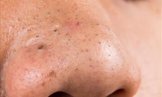 5 Ways to Get Rid of Blackheads at Home the Right Way