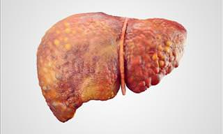 The Comprehensive Guide to Cirrhosis of the Liver