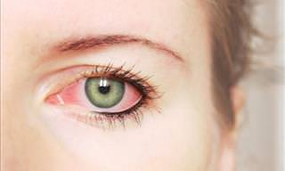 What do Your Eyes Say About Your Health?