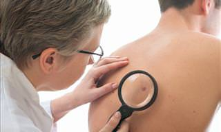 New, Portable Device Detects Skin Cancer