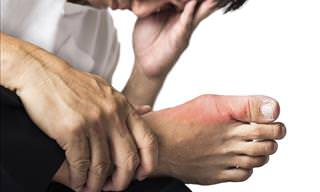 A New Treatment for Osteoarthritis of the Toe