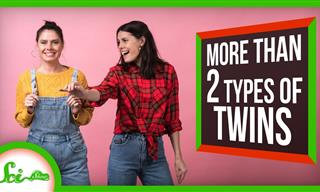 Human Development is Fascinating - 6 Rare Twin Types