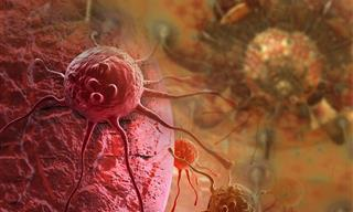 A New Treatment Destroys Tumors in Three Types of Cancer