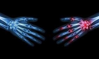 These 13 Home Remedies Are Effective Against Arthritis