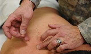9 Medical Problems That Can Be Treated with Acupuncture