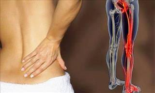 6 Great Exercises For Alleviating Sciatica Symptoms