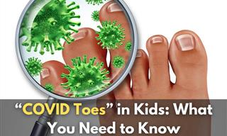 Do Parents Need to Be Wary of COVID Toes in Kids?