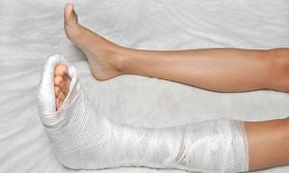 Certain Foods Can Help Mend Broken Bones Faster