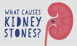 Discover What Really Causes Kidney Stones In This Video