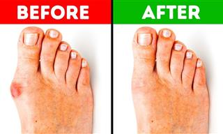 5 Effective Ways to Get Rid of Bunions Without Surgery