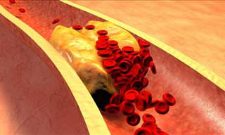 Are You at Risk of a Blood Clot?