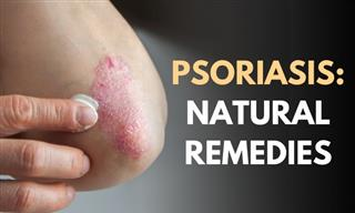 How to Manage Psoriasis at Home With Natural Treatments