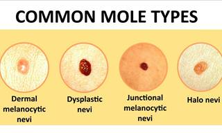 Everything You Need to Know about Mole Removal
